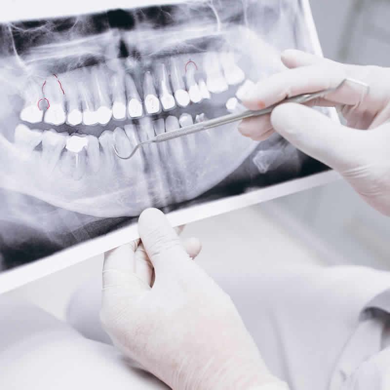Seguro Dental Granada Radiografías